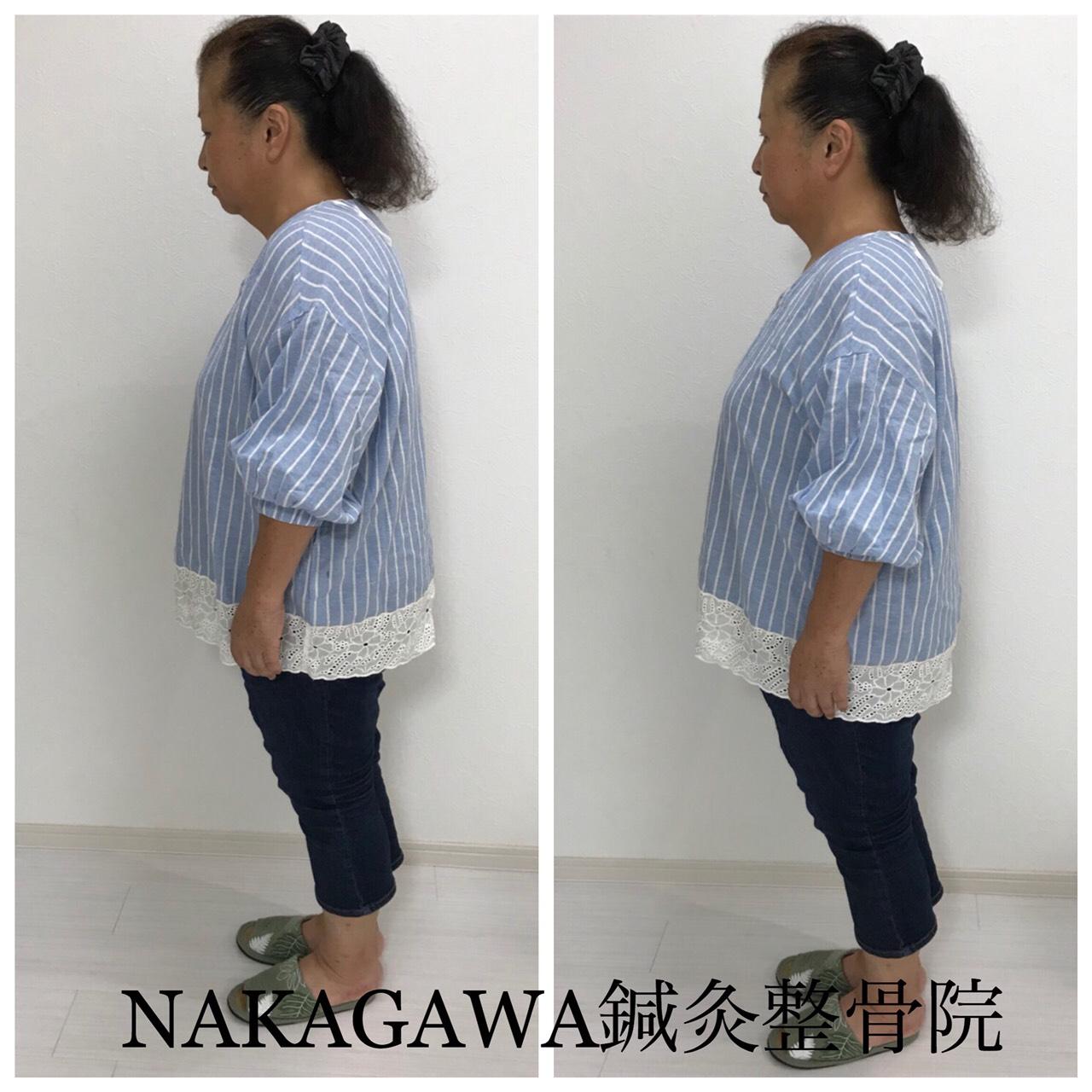 宝塚市 仁川駅 NAKAGAWA整骨院 猫背が改善された60代女性